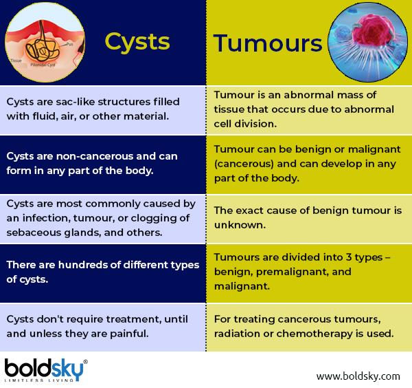 Cysts: Causes, Types, Symptoms & Treatment - Boldsky com