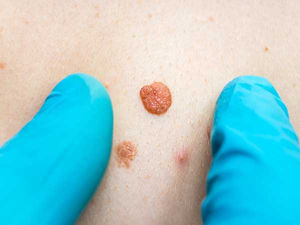 12 Effective Home Remedies To Get Rid Of Skin Tags