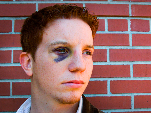 Black Eye: Causes, Symptoms, Diagnosis & Treatment