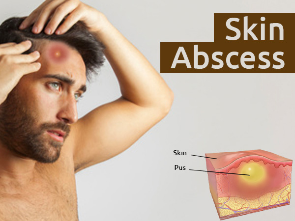 Skin Abscess: Causes, Symptoms, Diagnosis, Prevention And Treatment