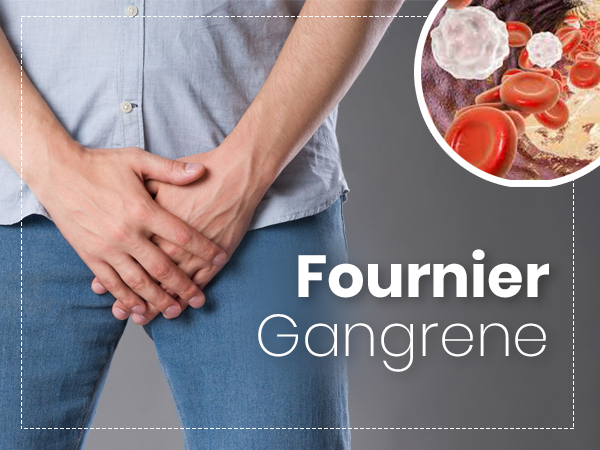 Fournier Gangrene: Causes, Symptoms, Risk factors, Treatment, And Prevention