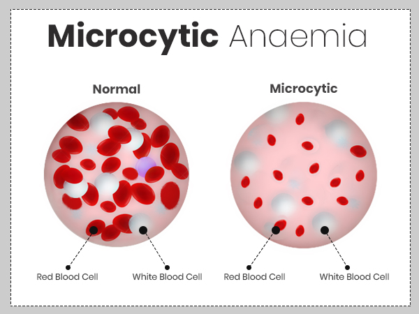Microcytic Anemia: Symptoms, Causes, Risk Factors, Treatment, And Prevention