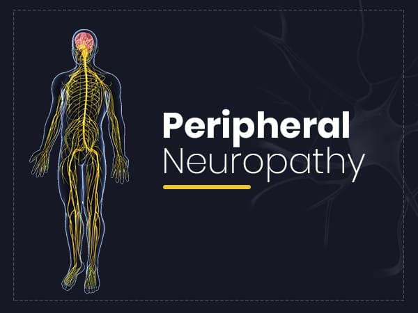 Peripheral Neuropathy: Symptoms, Causes, Risk Factors, Treatment And Prevention