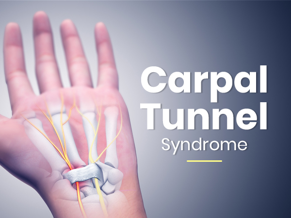 Carpal Tunnel Syndrome: Causes, Symptoms, Risk Factors, Treatment & Prevention