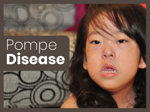 Pompe Disease: Types, Causes, Inheritance, Diagnosis & Treatment