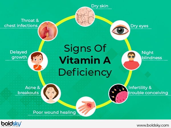 Can Vitamin A Deficiency Cause Blindness? - Boldsky.com