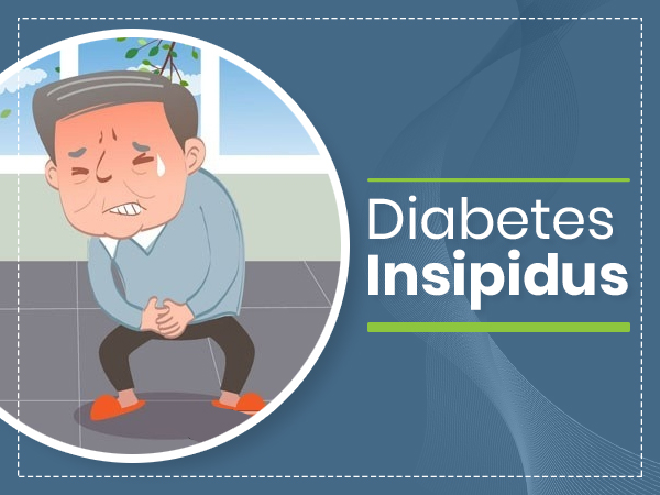 Diabetes Insipidus: Causes, Symptoms, Diagnosis, Treatment And Prevention