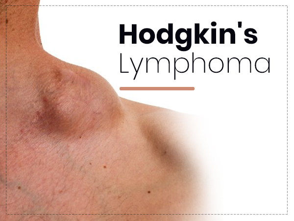 Hodgkin's Lymphoma: Types, Symptoms, Causes, Risk Factors, Diagnosis, Stages, And Treatment