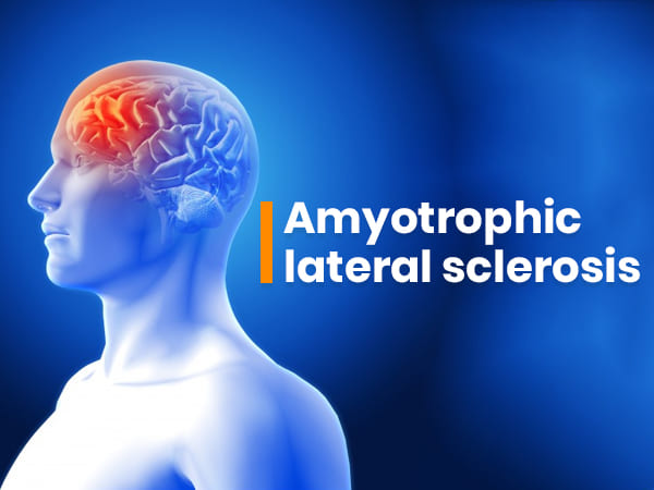 Amyotrophic Lateral Sclerosis: Causes, Symptoms, Diagnosis And Treatment