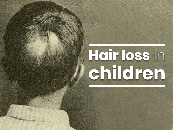 What Causes Hair Loss In Children