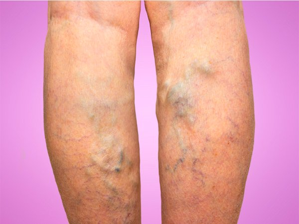 Varicose Veins: Causes, Symptoms, Diagnosis And Treatment