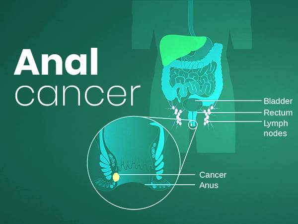 Anal Cancer: Causes, Symptoms, Diagnosis And Treatment
