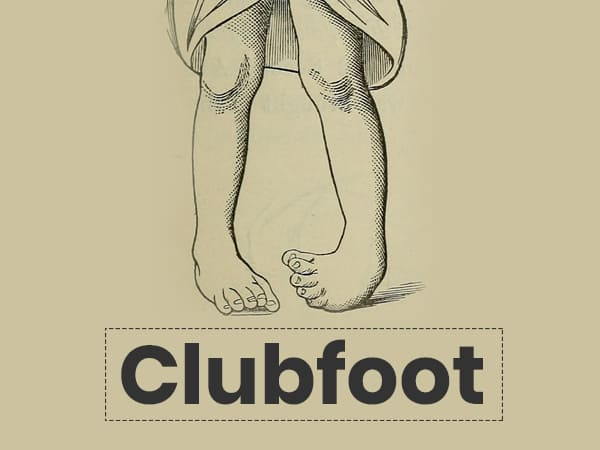 What Is Clubfoot