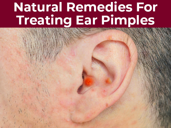 10 Effective Natural Remedies For Treating Ear Pimples