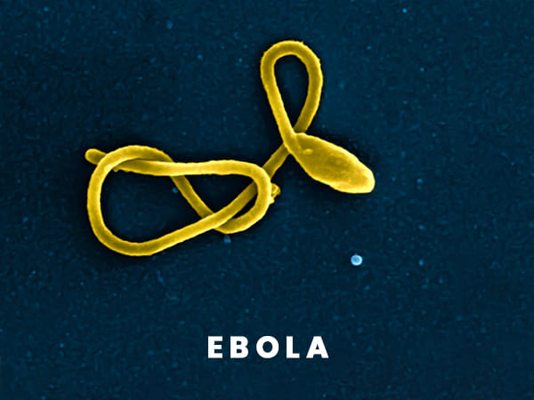 Can Ebola Virus Disease Be Prevented?