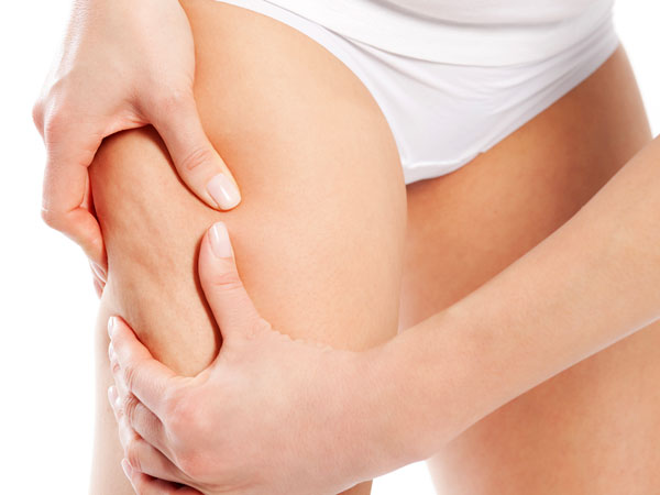 Castor Oil To Get Rid Of Cellulite