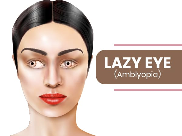 Treatment wandering eye Lazy Eye