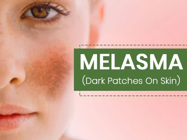 Melasma (Chloasma): What Are The 6 Factors That Cause It? Symptoms, Treatments And Prevention