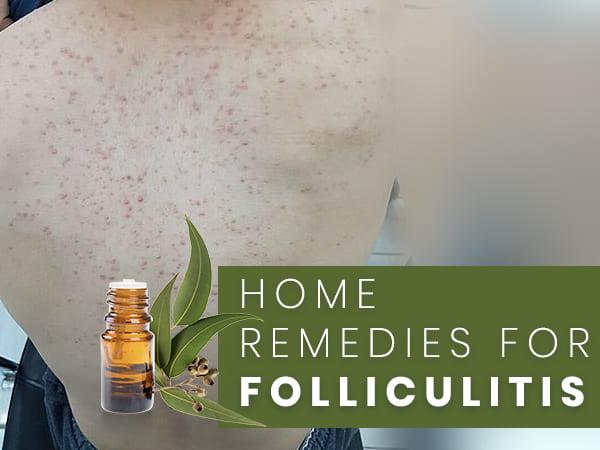 Aloe vera folliculitis