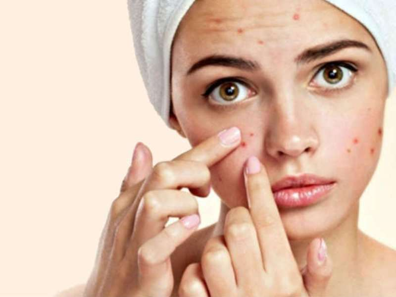 How To Deal With Monsoon Acne