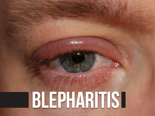 Blepharitis: Causes, Symptoms, Complications, Diagnosis And Treatment