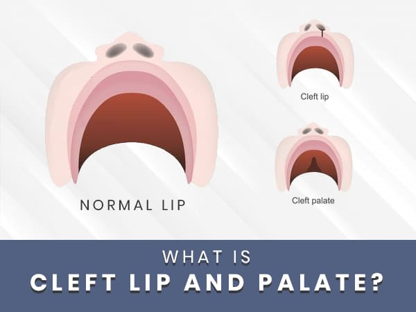 National Cleft And Craniofacial Awareness and Prevention Month: What Is Cleft Lip And Palate?