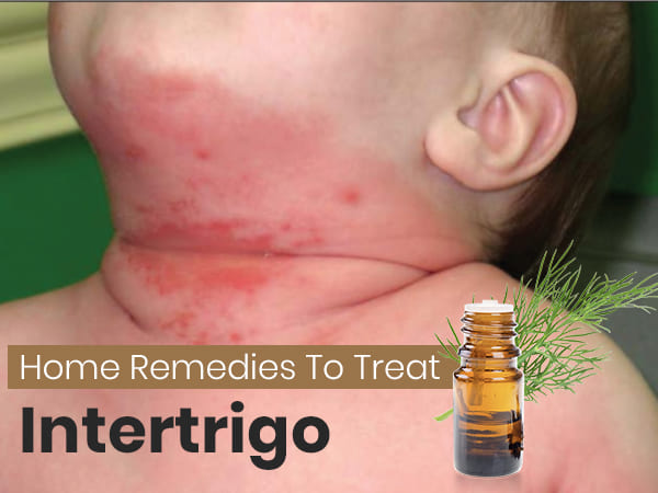 How To Treat Intertrigo: Safe And Effective Home Remedies