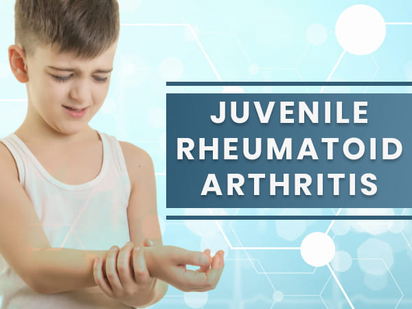 Juvenile Rheumatoid (Idiopathic) Arthritis: Causes, Symptoms, Diagnosis And Treatment
