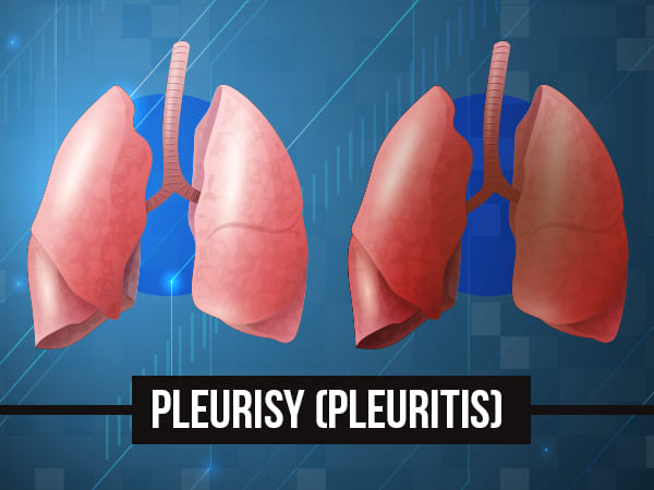 Pleurisy (Inflammation Of The Lung Lining): Symptoms, Causes, Treatments and Prevention