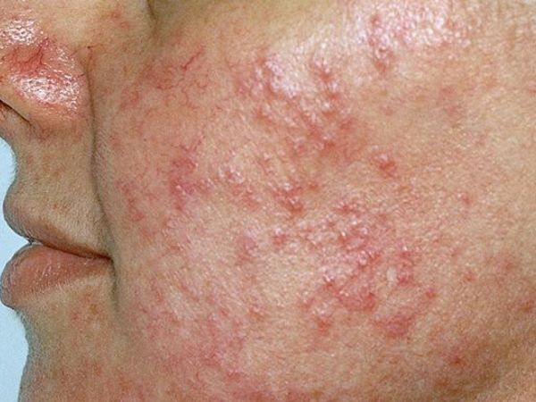 12 Most Effective Home Remedies For Rosacea On Face