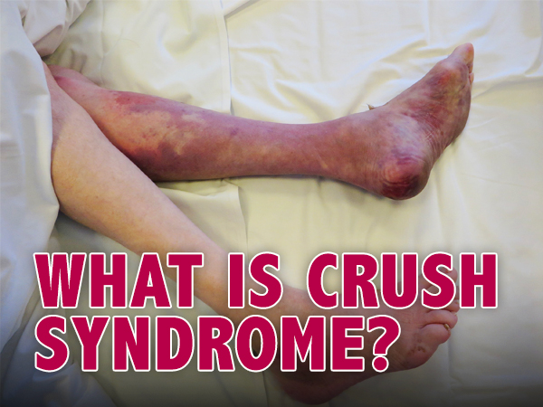What Happens In Crush Syndrome? Know About Its Causes, Symptoms, Complications And Management