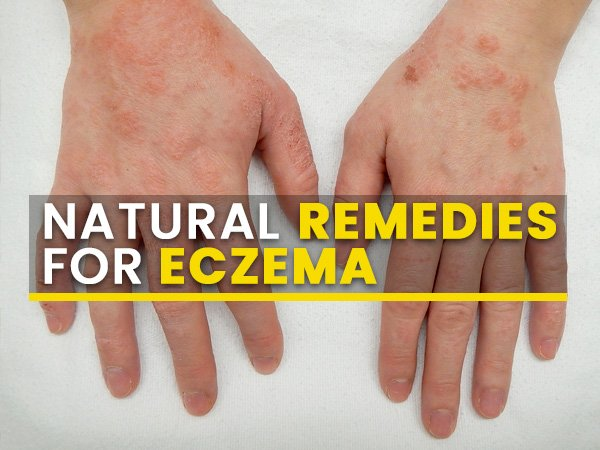 8 Effective Natural Remedies That Can Help Manage Eczema Symptoms