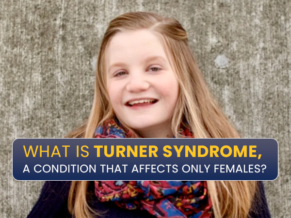 Turner Syndrome: Causes, Symptoms, Complications And Treatments