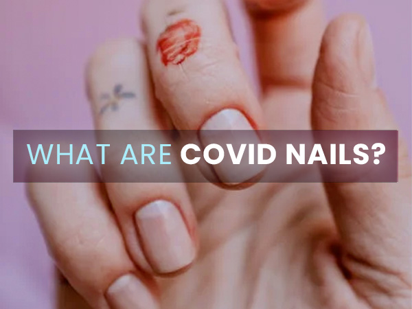 COVID Nails: Is It A Serious Sign Related To COVID-19?