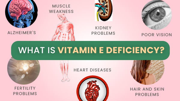 Vitamin E Deficiency: Causes, Symptoms, Complications, Diagnosis And Treatments