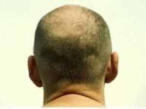 Hair Cut Baldness Sued