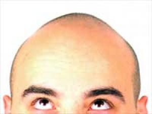 Prevent Baldness