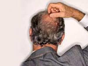 Home Remedies Hair Growth Bald Spots 050411 Aid