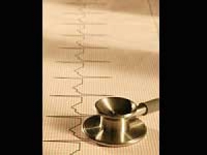 Heart Attack Recovery 270411 Aid