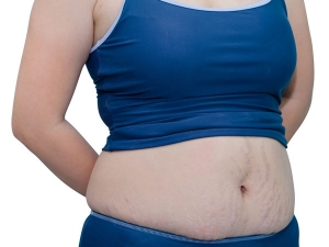 Reasons For Weight Gain After Pregnancy