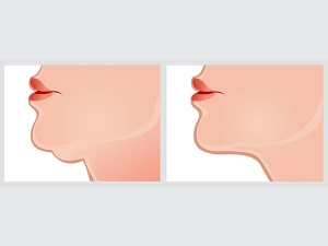 Healthy Tips To Redefine Your Jawline