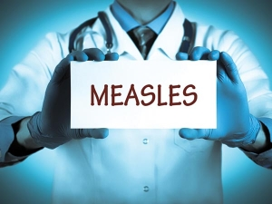 Measles Immunisation Day 2016 Things To Know About The Summer Disease