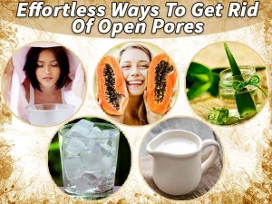 Effortless Ways To Get Rid Of Open Pores