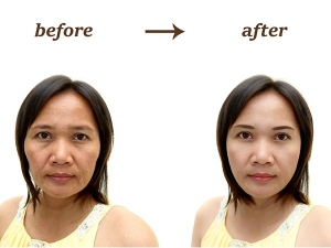 Homemade Remedy To Make You Look Ten Years Younger In A Week