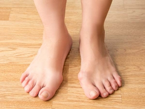 Try These Home Remedies For Bunions