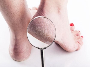 Facts About Cracked Heels That Are Ugly But True