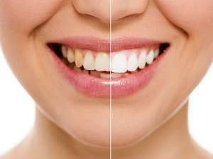 Two Kitchen Ingredients Can Whiten Your Teeth In Two Days