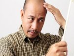 Ayurvedic Remedies To Treat Bald Patches On Hair Scalp