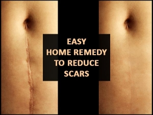 Try This Powerful Home Remedy To Reduce Injury Scars