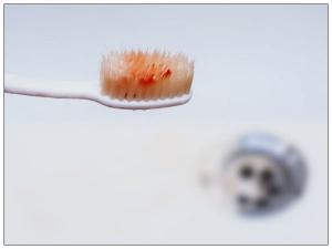 Weird Reasons Behind Bleeding Gums